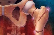 Медіальний перелом шийки стегна: клінічна симптоматика і тактика корекції