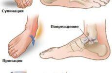 Відновлюючі, зігріваючі та регенеруючі мазі після перелому гомілковостопного суглоба