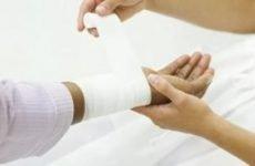Перев'язка гнійної рани: алгоритм, набір інструментів для проведення процедури перев'язки рани