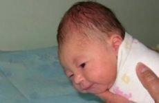 Гематома у новонародженого на голові: симптоми і лікування, травма після падіння