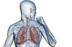 Як розвивається пневмонія? Чому, скільки часу, як швидко розвивається у дітей і дорослих?