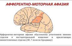 Вправи для відновлення мови після інсульту є важливою ланкою реабілітації