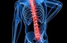 Осколковий перелом хребта – механізм отримання, симптоматичні прояви травми, діагностика і способи лікування
