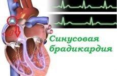 Синусова брадикардія: причини, симптоми і тактика терапії