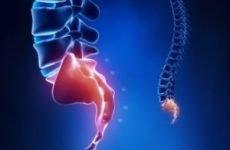Перелом куприка: симптоми і лікування, наслідки та реабілітація в домашніх умовах