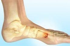 Ознаки перелому стопи: анатомічні особливості, класифікація та симптоматичні ознаки захворювання, способи лікування і реабілітації