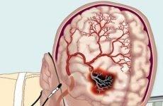 З-за чого відбуваються порушення мозкового кровообігу?