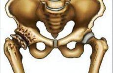 Хондропротектори при коксартрозі кульшового суглоба: кращі і ефективніші, які допомагають?