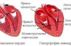 Діагностика та лікування гіпертрофії правого передсердя