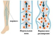 Які причини варикозного розширення вен і як їх усунути?