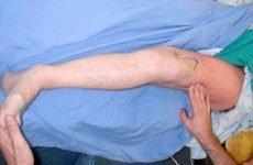 Набряк після перелому шийки стегна: особливості прояву, причини, методи лікування та профілактики