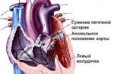 Види вад серця, їх діагностика і лікування