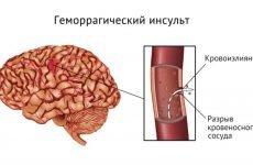 Симптоми, небезпека і лікування набряку мозку при інсульті