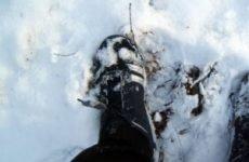 Обмороження ніг: перша допомога і лікування стоп, симптоми ступенів ураження