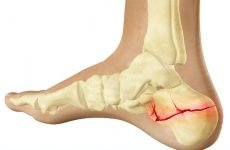 Осколковий перелом п'яти: причини, класифікація, методи лікування
