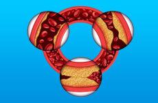 Симптоми і лікування захворювань серцево-судинної системи