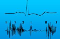 Систолічний шум в серці, і на його верхівці у дитини і дорослого