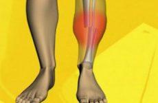 Симптоми перелому гомілки: особливості отриманої травми, симптоматика перелому з і без зміщення, головні ознаки відкритого і закритого видів травми