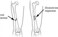 Осколковий перелом стегнової кістки: особливості травми, діагностика і лікування