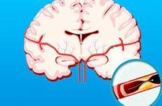 Препарати та народні засоби для лікування церебрального атеросклерозу