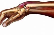 Перелом човноподібної кістки: якими ускладненнями небезпечний, методики лікування