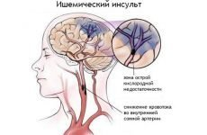 Інсульт у дітей: симптоми, ознаки та наслідки