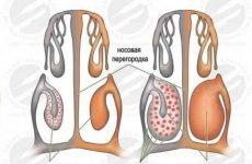 Припікання судин в носі лазером або сріблом: причини, наслідки та відгуки