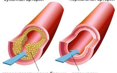 Стентування коронарних судин: інноваційні методики лікування хвороб серця – Serdce.guru