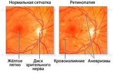 Фонова ретинопатія: наскільки небезпечні ретинальные судинні зміни?