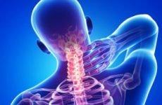 Синдром хребетної артерії при шийному остеохондрозі: симптоми, лікування