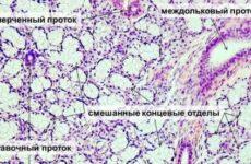 Запалення слинної залози (сиалоаденит): симптоми і лікування, фото, діагностика, причини