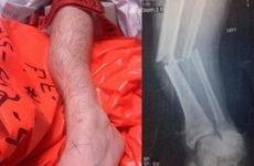 Операція при переломі гомілки – особливості будови суглоба, походження отриманих травм і хірургічні методи лікування