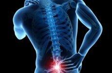 Симптоми перелому хребта, діагностика, лікування