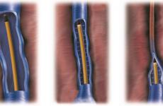 Лазерне лікування варикозного розширення вен