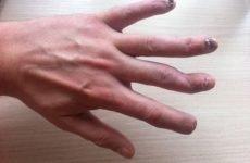 Перелом пальця руки: анатомія, ознаки, види, перша допомога, лікування і наслідки травми