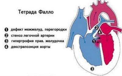 Тетрада Фалло у дітей (вади серця у новонароджених): причини, симптоми та наслідки