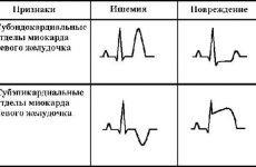 Інфаркт міокарда в зоні лівого шлуночка: діагностика і лікування патології