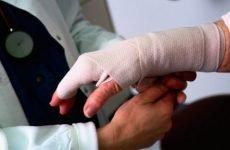 Перелом мізинця на руці зі зміщенням: терміни зрощення кістки, загальний прогноз реабілітаційного періоду