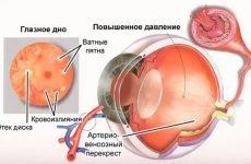 Внутрішньоочний тиск у дорослого: норми, причини, симптоми і лікування