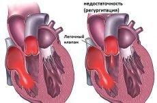 Діагностика та лікування недостатності клапана легеневої артерії