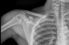 Складні переломи плеча: різновиди травм і можливі ускладнення