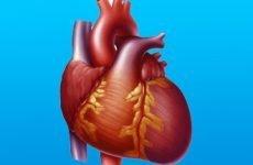 Що таке дилатаційна кардіоміопатія і які її симптоми