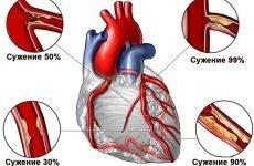 Колючий біль в області серця: що робити і які причини