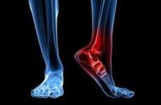 Як відбувається перелом човноподібної кістки стопи, симптоми, основні методи діагностики та лікування