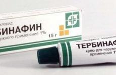 Тербінафін від грибка нігтів: таблетки або мазь?