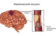Харчування після інсульту: що можна їсти при інсульті головного мозку