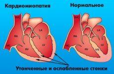 Що таке функціональна кардіопатія у дітей і дорослих