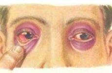 Перелом основи черепа: симптоми та перша допомога, методи лікування травми, ускладнення
