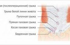 Грижа кишечника: причини кишкової патології, симптоми, лікування