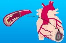 Чим відрізняється інфаркт від інсульту: у чому різниця і що небезпечніше?